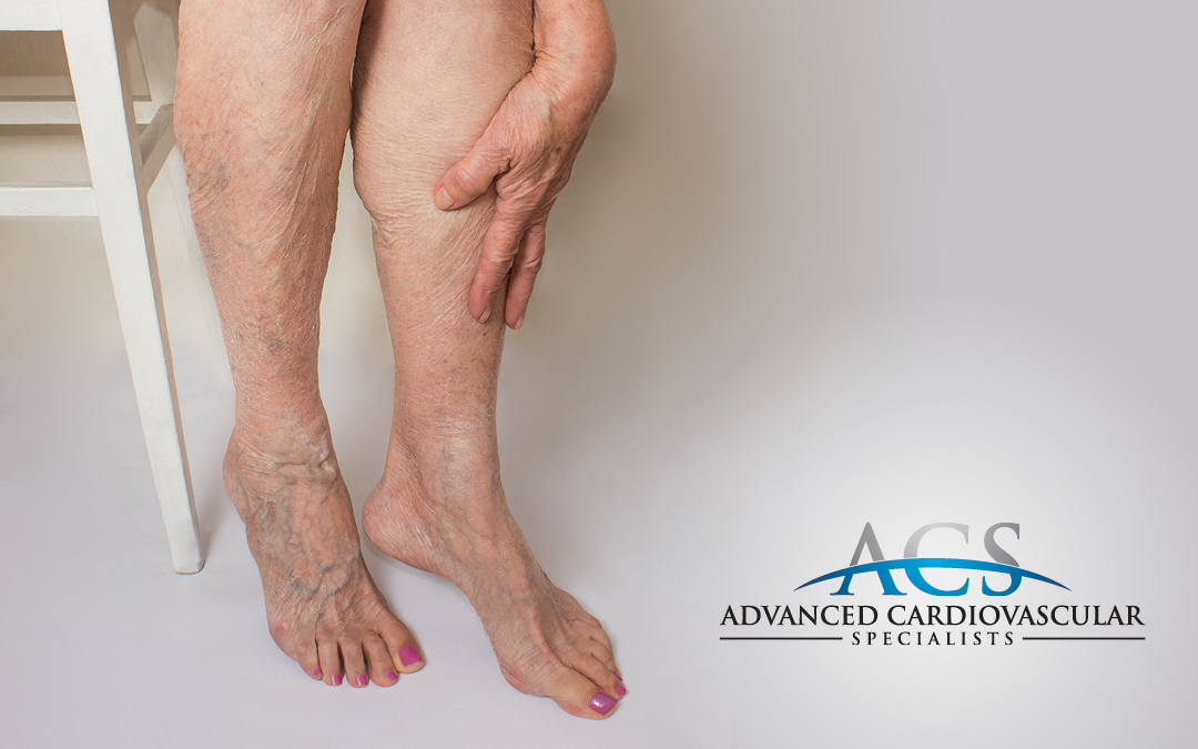 The Importance of Healthy Veins & Arteries
