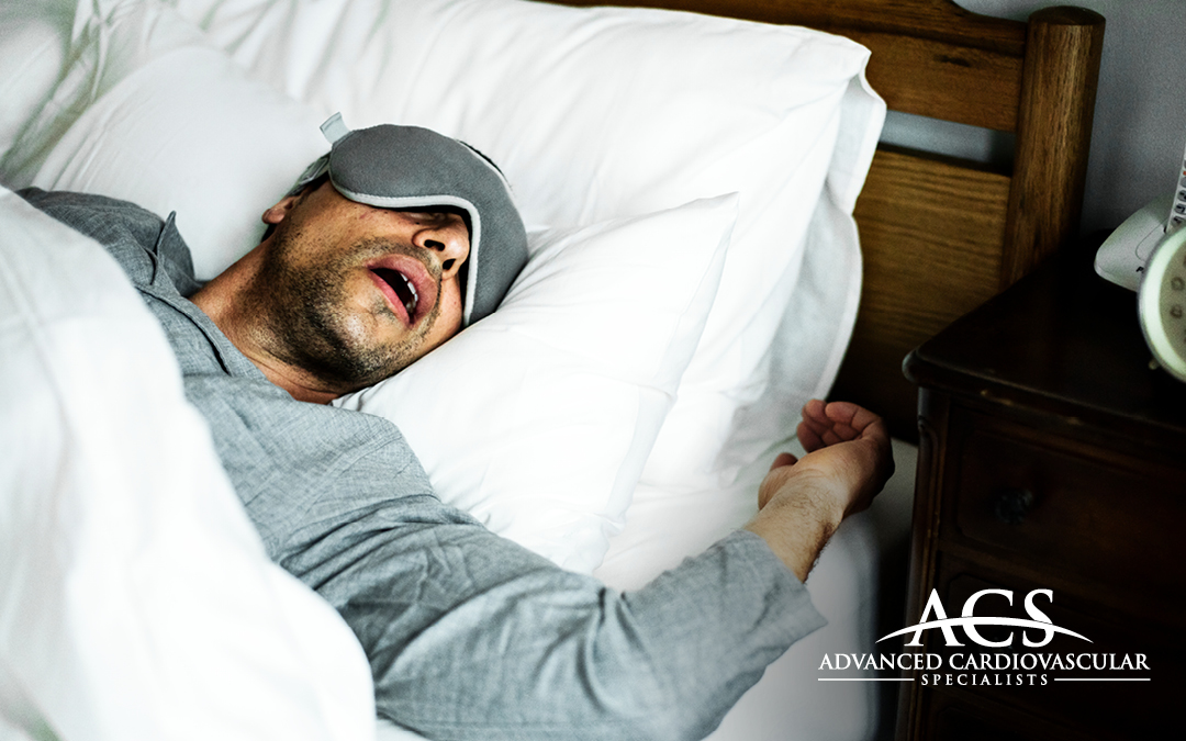 The Sleep Apnea & Heart Failure Connection