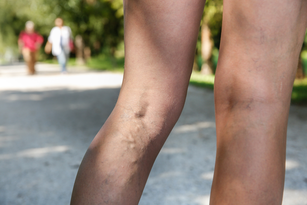 Varicose Veins and Aging